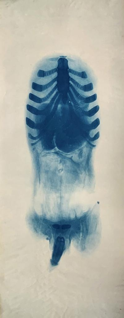 Anatomical Cyanotype of a Cadaver II