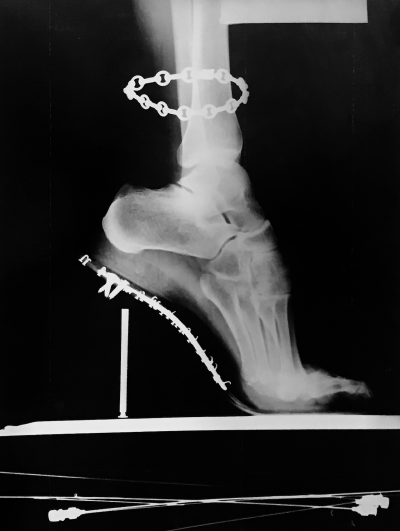 Helmut Newton Fashion X Ray Van Cleef Arpels French Vogue 1994